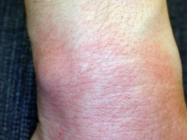 images of hand eczema dermatitis
