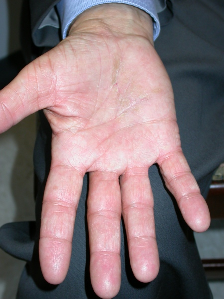 Images of Hand Eczema (Dermatitis)